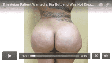 fat transfer, butt lift, video