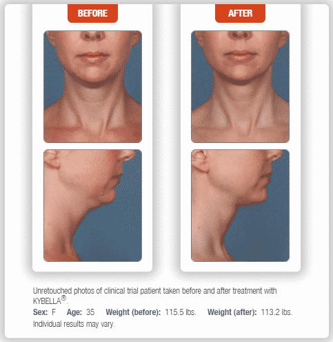 kybella, double chin, video, marketing